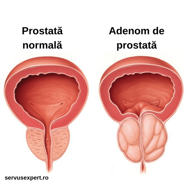 Hipertrofie prostata
