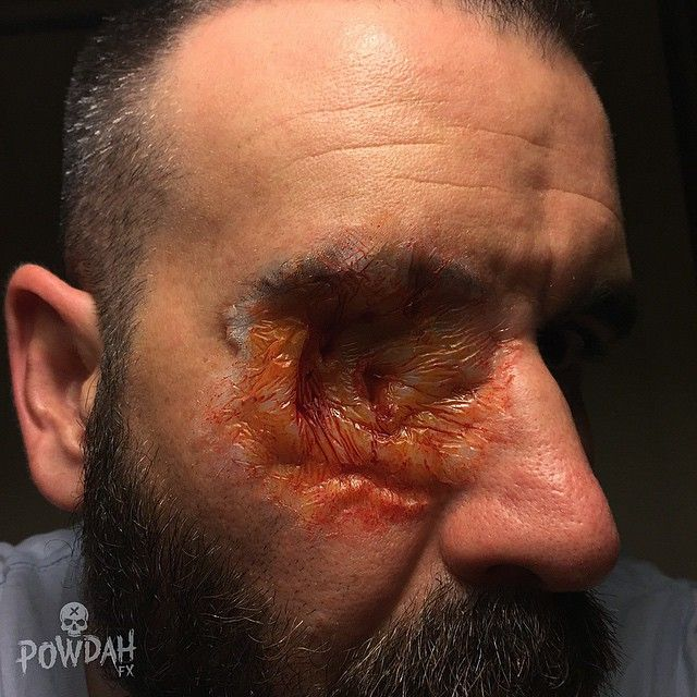 Diseased Eye Socket. Sometimes Good Things Come From SFX