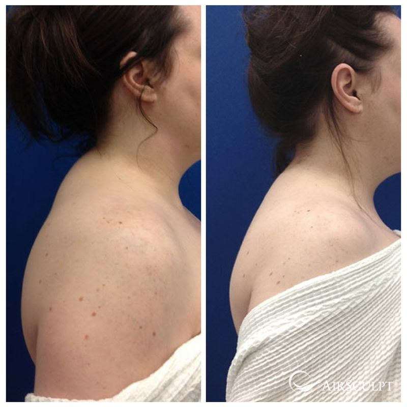 one of the most effective ways to get rid of a dorsocervical fat pad