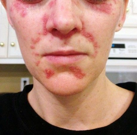 steroid induced perioral dermatitis