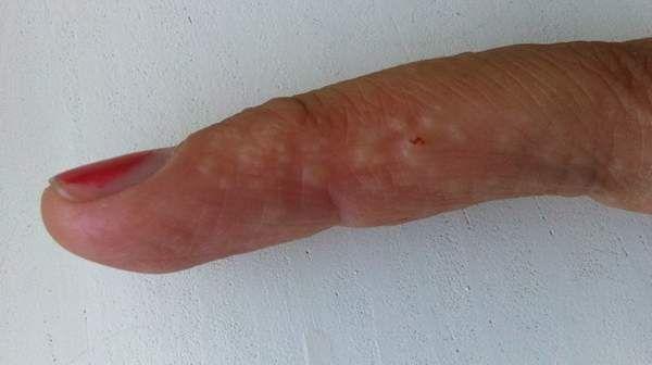 Dyshidrotic Eczema Or Dyshidrosis Is A Skin Condition In