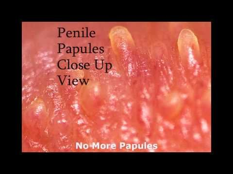 Pin Pa Pearly Penile Papules Ppp