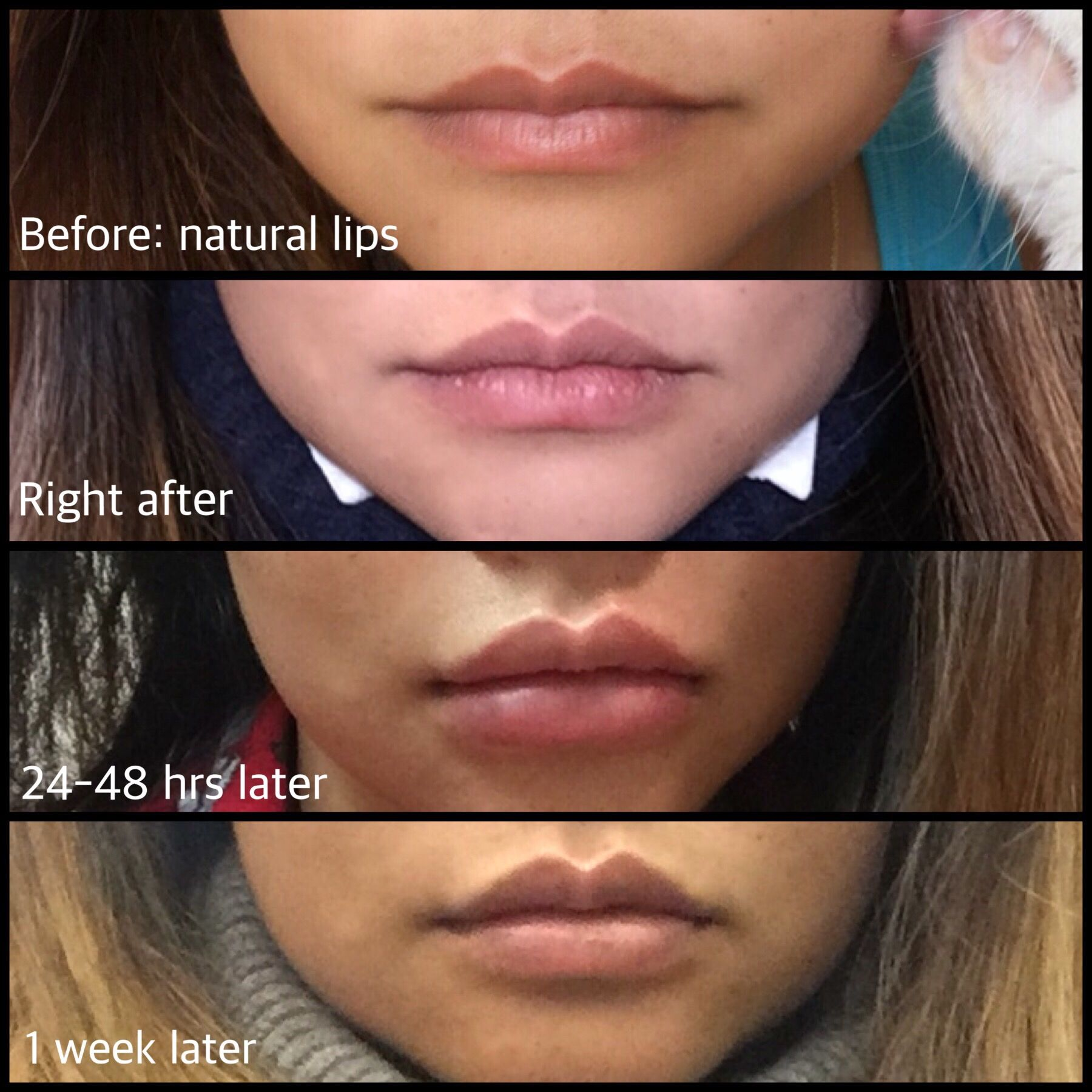 ac7e60a1d51fbfe0bf4ab1717a47c812 - How To Get Swelling To Go Down On Lip
