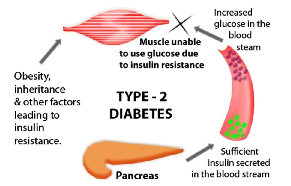 The role of obesity in the onset of type 2 diabetes mellitus