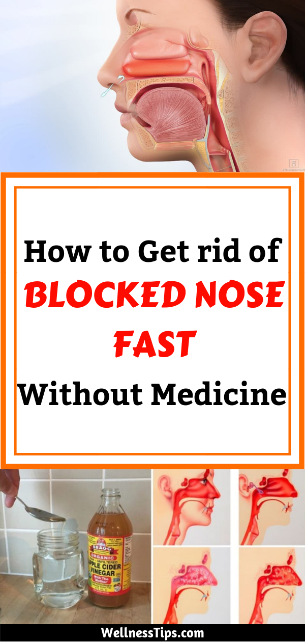 How To Get Rid Of Hard Boogers In Nose