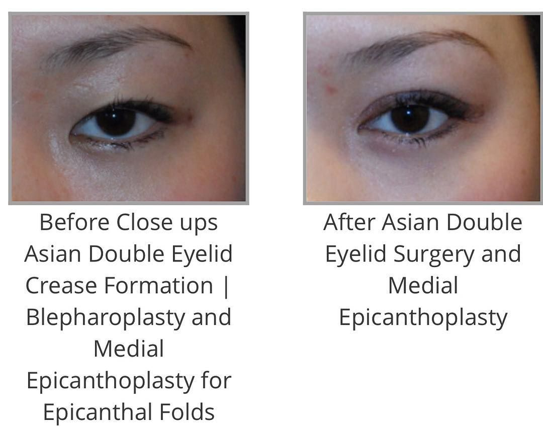 ac9889ae636c0281e1fa6100e7f59303 - How To Get Rid Of Double Eyelids Without Surgery