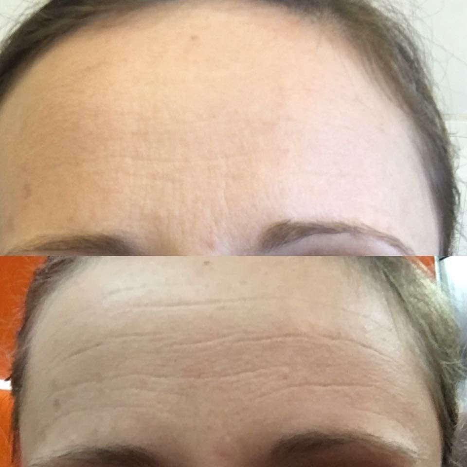 Results using the line corrector and face life at home treatment this product is an amazing alternative to botox or injectables and you can do it yourself right from home solutioingenieria Choice Image