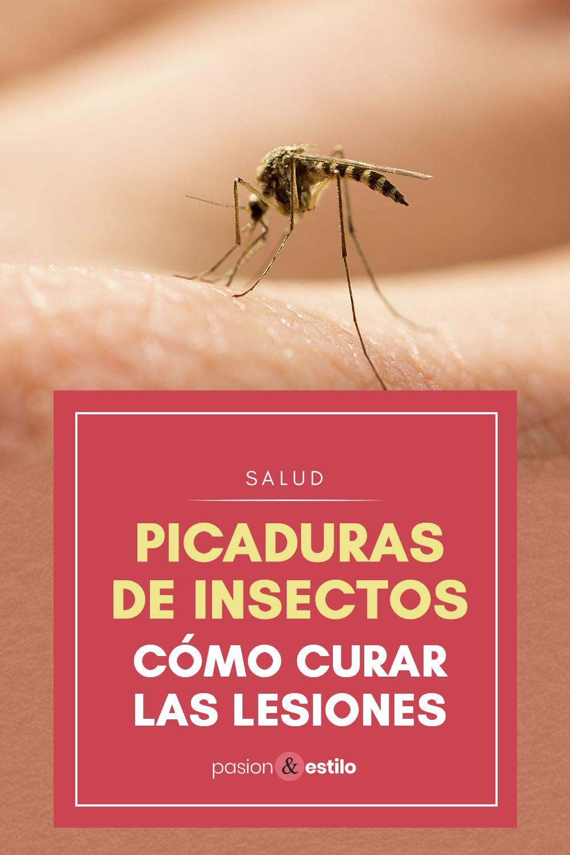 Cómo Curar Las Lesiones Por Picaduras De Insectos Picaduras De Insectos Picaduras Picaduras De Mosquitos