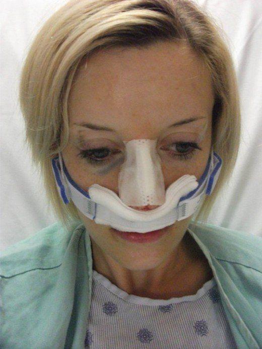 aca431df64dd9f7d40b05a90ae61a528 - How Much Does It Cost To Get A Sinus Surgery