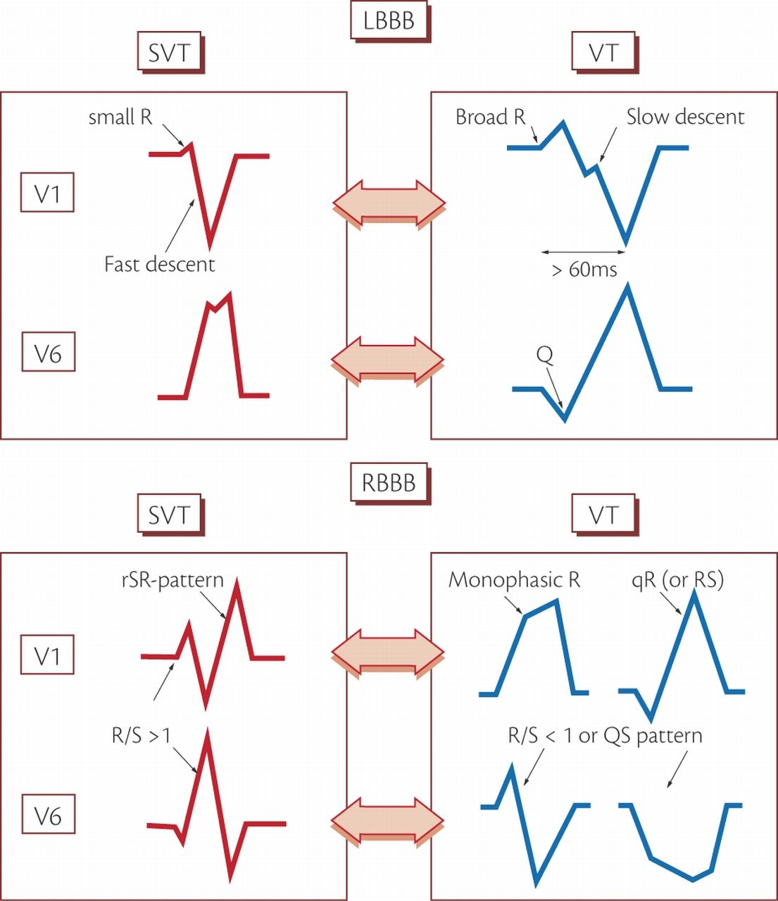 Ekg Placement Of Leads And Diagram Review Ebooks