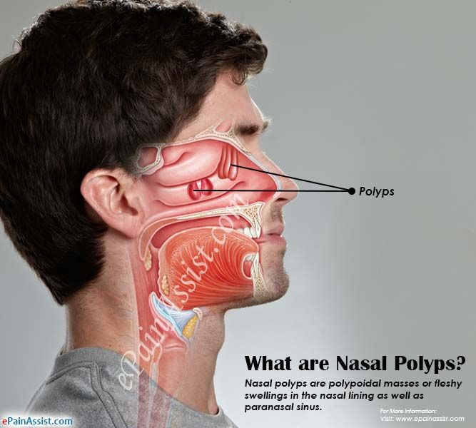 What are Nasal Polyps, Know its Causes, Symptoms, Treatment ...