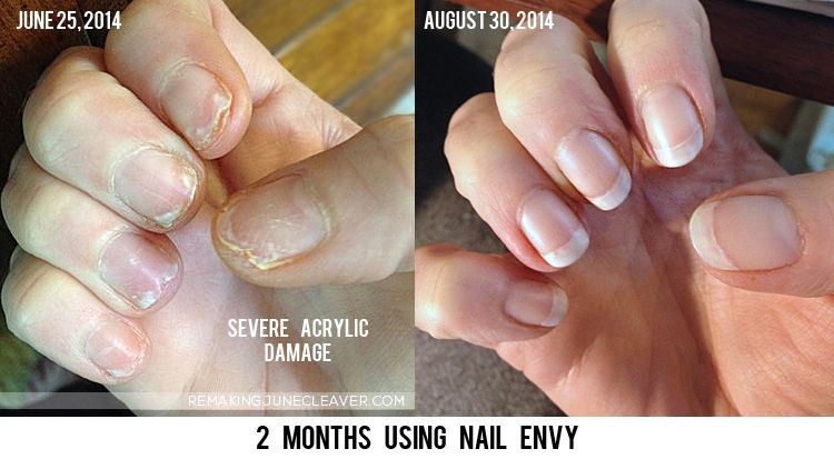 Does Nail Envy Really Work Before After Photos