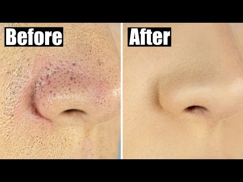 (17) How to Reduce Bumpy, Textured Foundation for Smooth