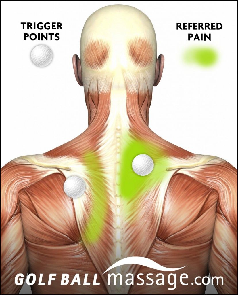 Triggerpointdemomidback Trigger Points Knots In Neck Muscle Massage Techniques Trigger Points
