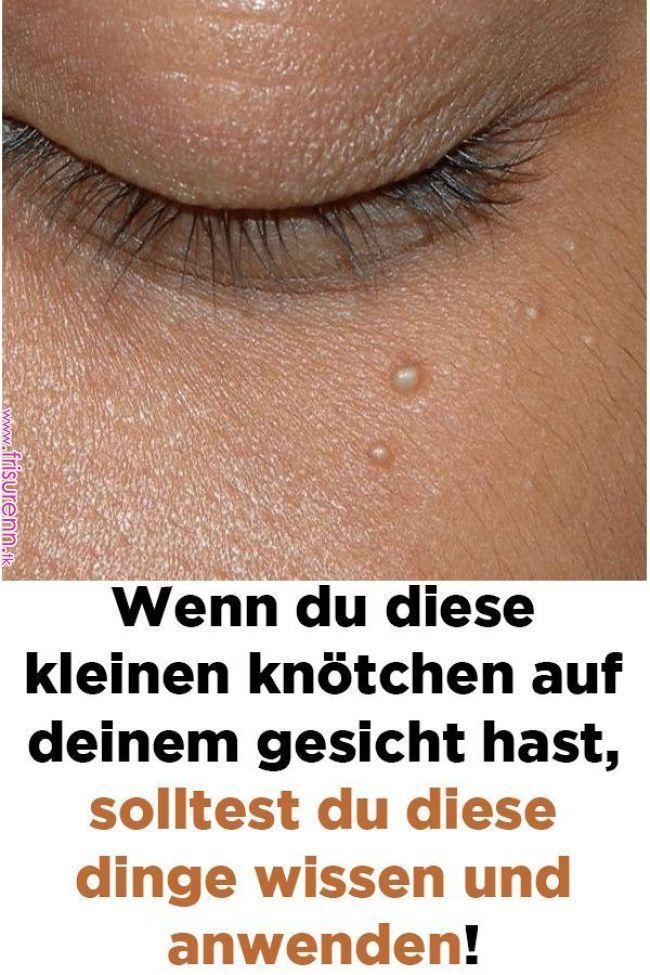 Se hai questi piccoli noduli sul viso, dovresti sapere e applicare queste cose! – http://machine-toptrendspint.jumpsuitoutfitdressy.tk
