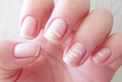 O que são essas manchas nas minhas unhas?