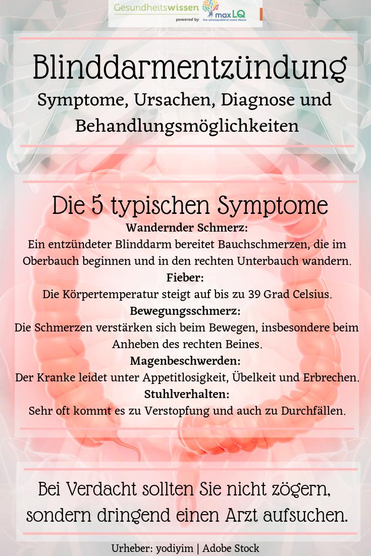 Akute Blinddarmentzündung: Symptome, Ursachen, Diagnose