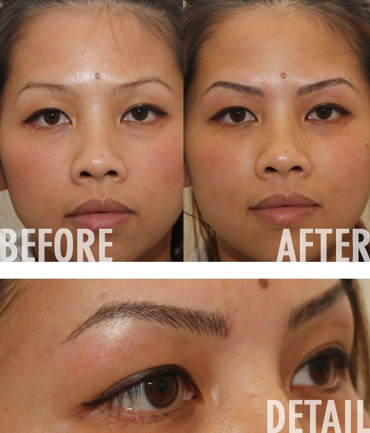 eyebrow removal before and after images