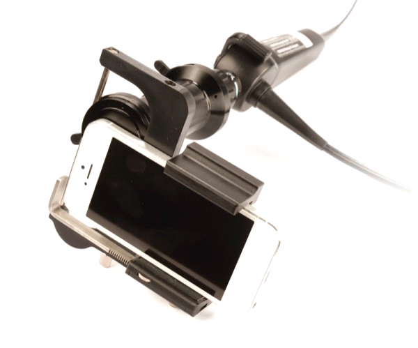 ClearWater ClearSCOPE Endoscopic Imaging Smartphone