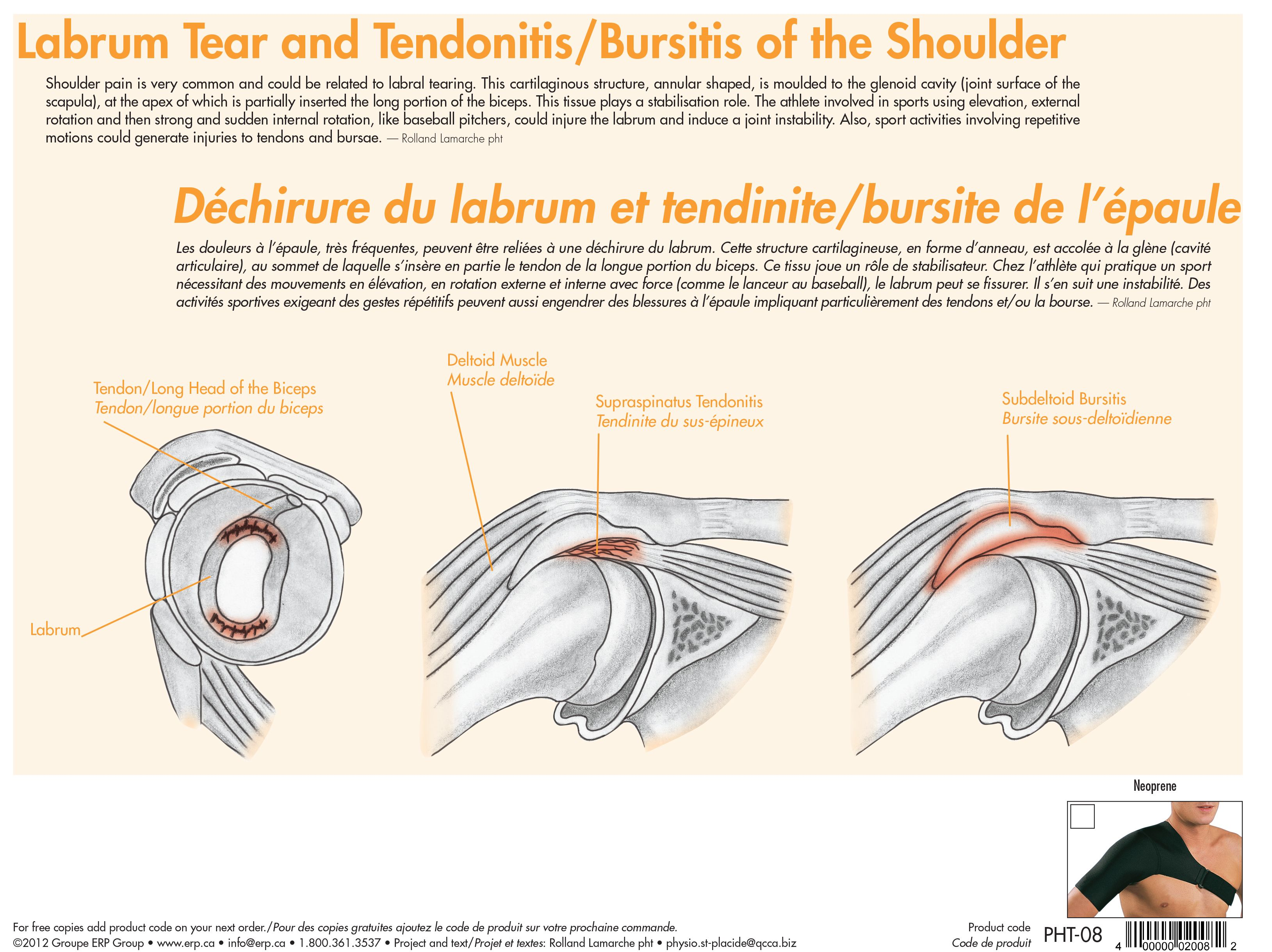 Labrum Tear and Tendonitis / Bursitis of the Shoulder | Sports ...