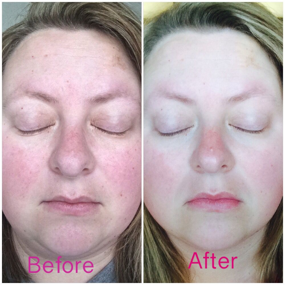 My Nofilter Before And After Of My Experience With Doterra S Verage Skin Care Collection Amazi Essential Oils For Rosacea Serious Skin Care Rosacea Skin Care