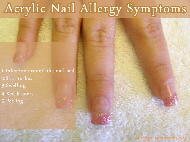 True Fact Allergy Symptoms Acrylic Nails Hands Face Allergies The