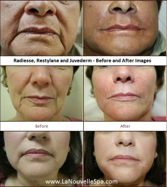 #Radiesse #Restylane and #Juvederm - Before and After ...