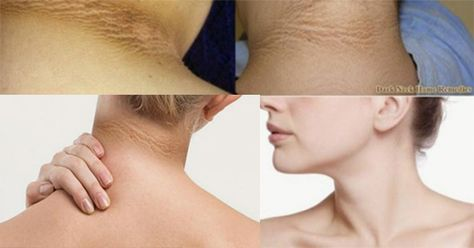 how to get rid of dark neck and back fast adsbygoogle