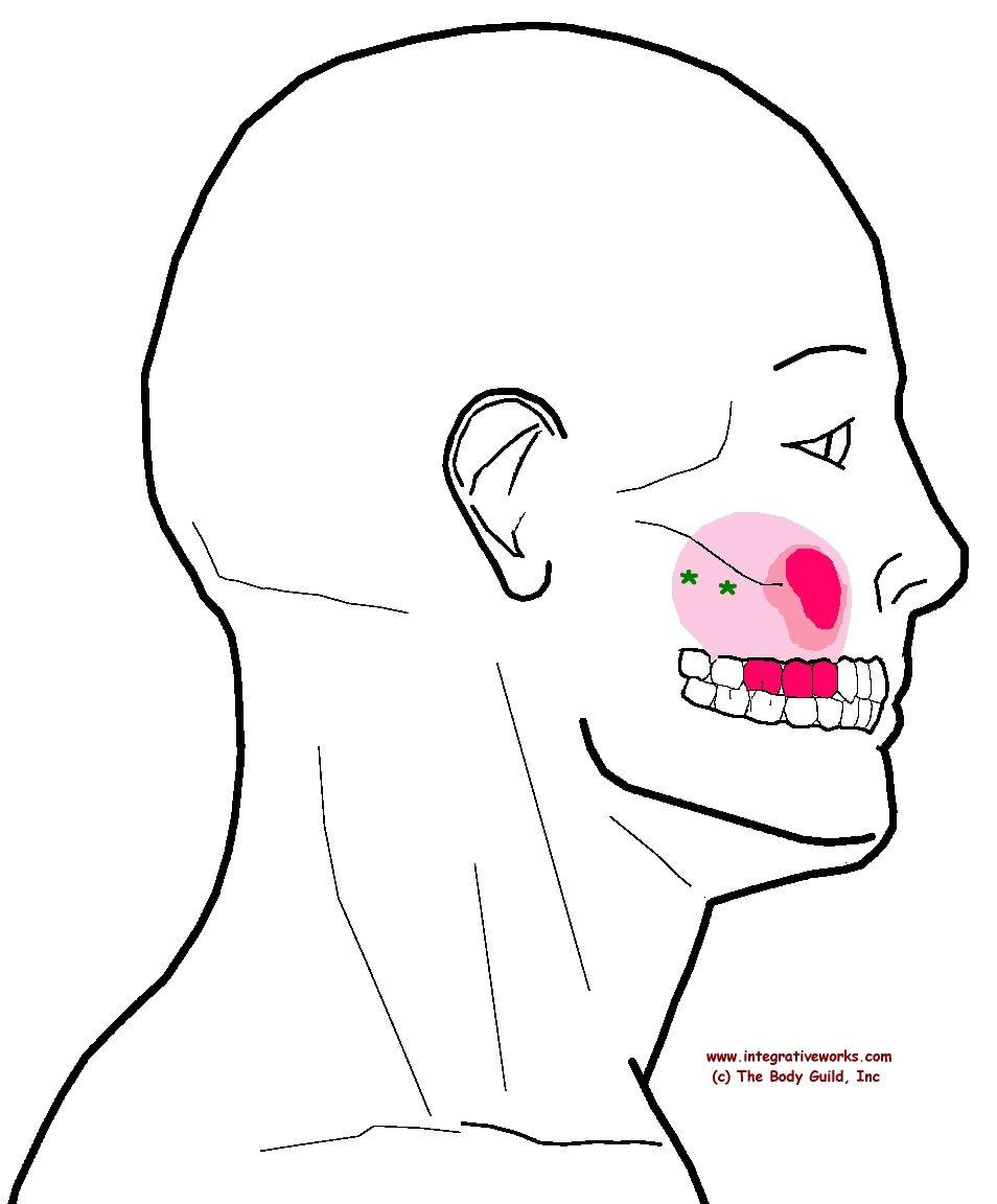 understanding trigger points – sinus pressure with sensitive upper teeth   tooth pain and teeth diagram of cheek bone cheek ulcer diagram