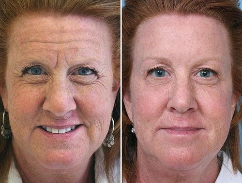 Toning The Face And Neck: Face Aerobics Solution For An Organic And No Surgery Facelift