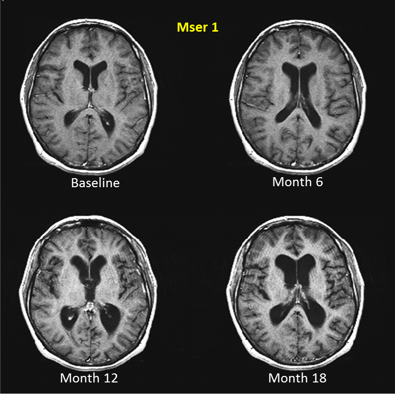 mri images of brain affected by ms Google Search