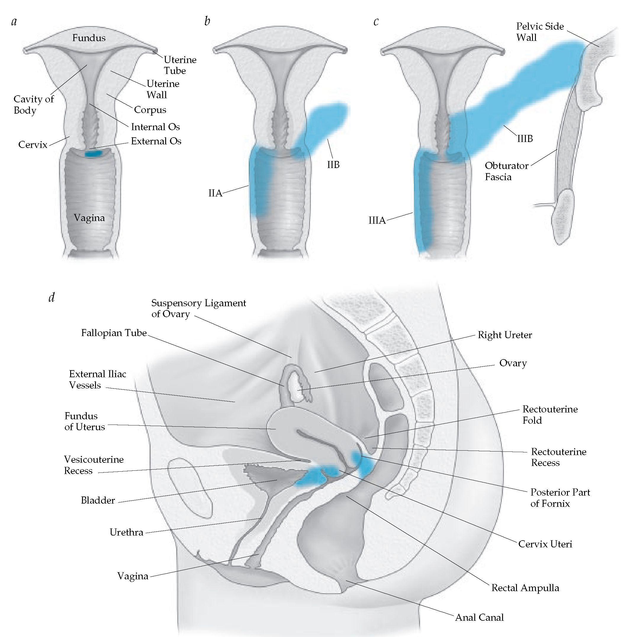Cervical cancer staging | IMLE | Pinterest