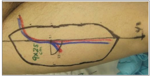 The Anterolateral Thigh Flap Clinical Applications and