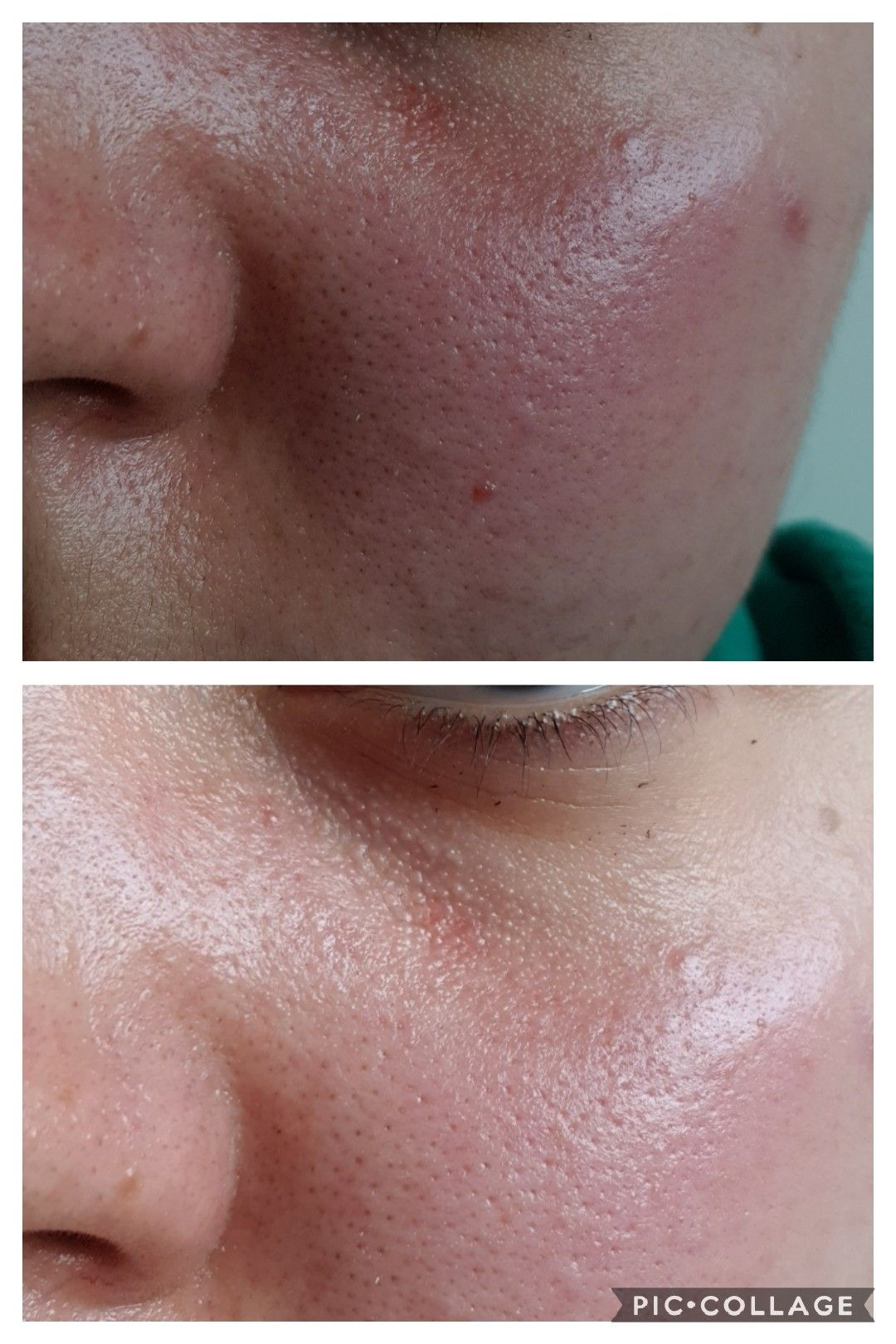 How To Get Rid Of Small Dry Bumps On Face