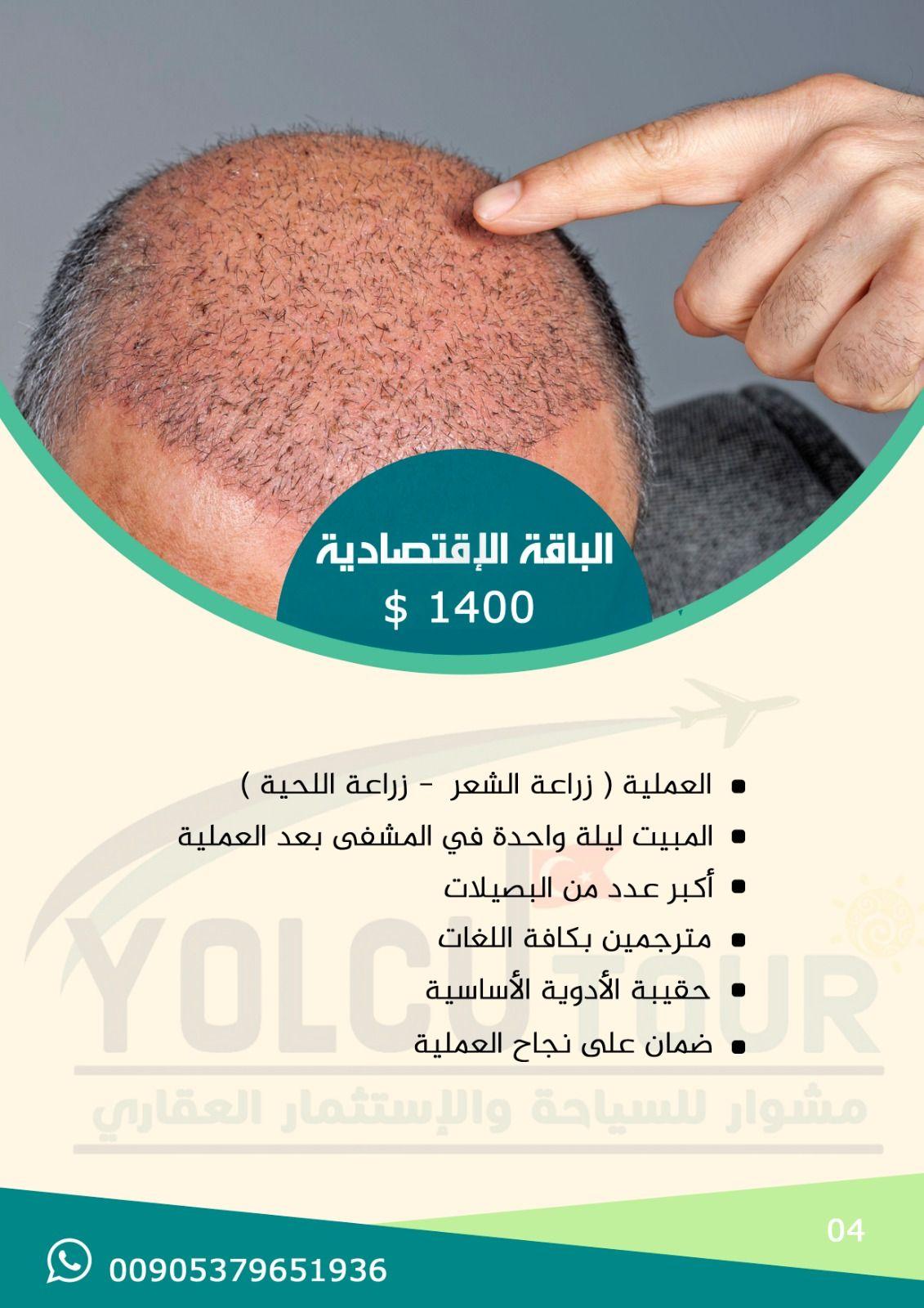 عروض زراعة الشعر