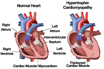 Hypertrophic Cardiomyopathy Affects Young And Old Hypertrophic Cardiomyopathy Heart Conditions Enlarged Heart