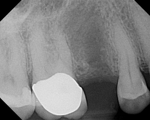 """Why implant torque is not the important factor"" by periodontist Dr. Gregory Steiner DDS, MS, founder & CEO of Steiner Biotechnology. Dentaltown Implantology http://www.dentaltown.com/MessageBoard/thread.aspx?a=11&s=2&f=123&t=250168&g=1&st=torque. There have been many posts discussing implant torque. High Implant torque is considered good just as hard bone is considered good for implant integration. However high torque and hard bone is only related to the mineral content of bone which has…"