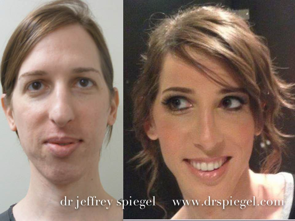 Click To Close  Facial Feminization Surgery  Ffs Surgery -5125