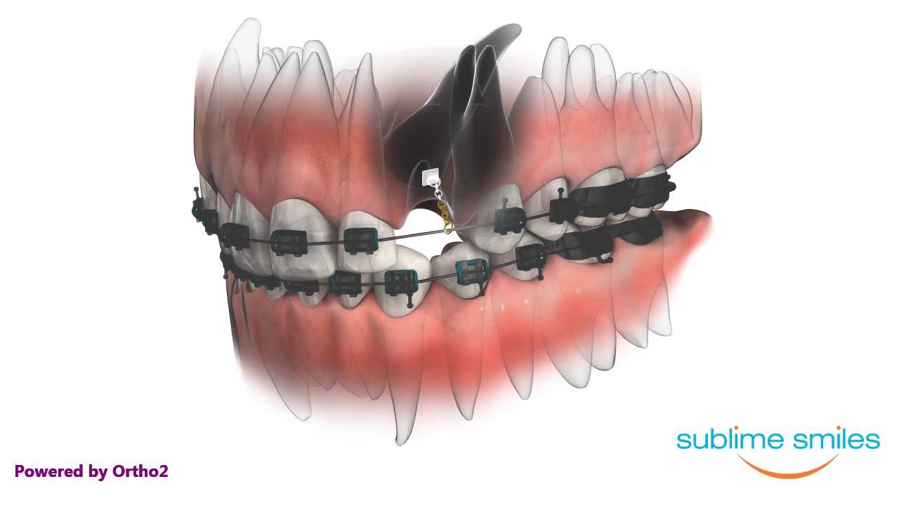 Canine impaction and exposure orthodontic appliances