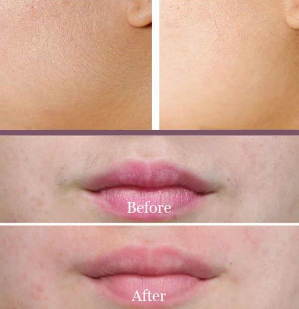 What is the best way to remove facial hair