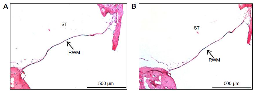 Figure 9 Hematoxylin and eosin-stained histological sections of a decalcified guinea pig middle-ear sample.
