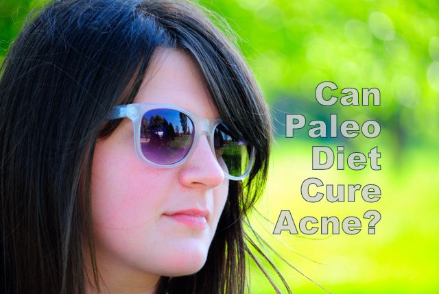 Paleo Diet and Acne...