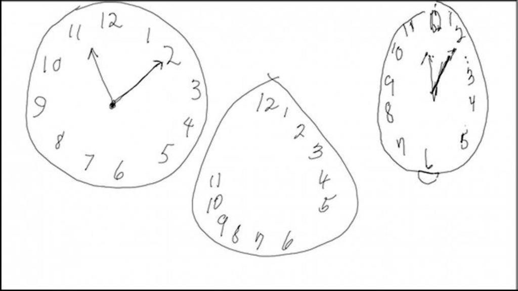El test del reloj que permite detectar el Alzheimer y el Párkinson http://bit.ly/1hsBGU7