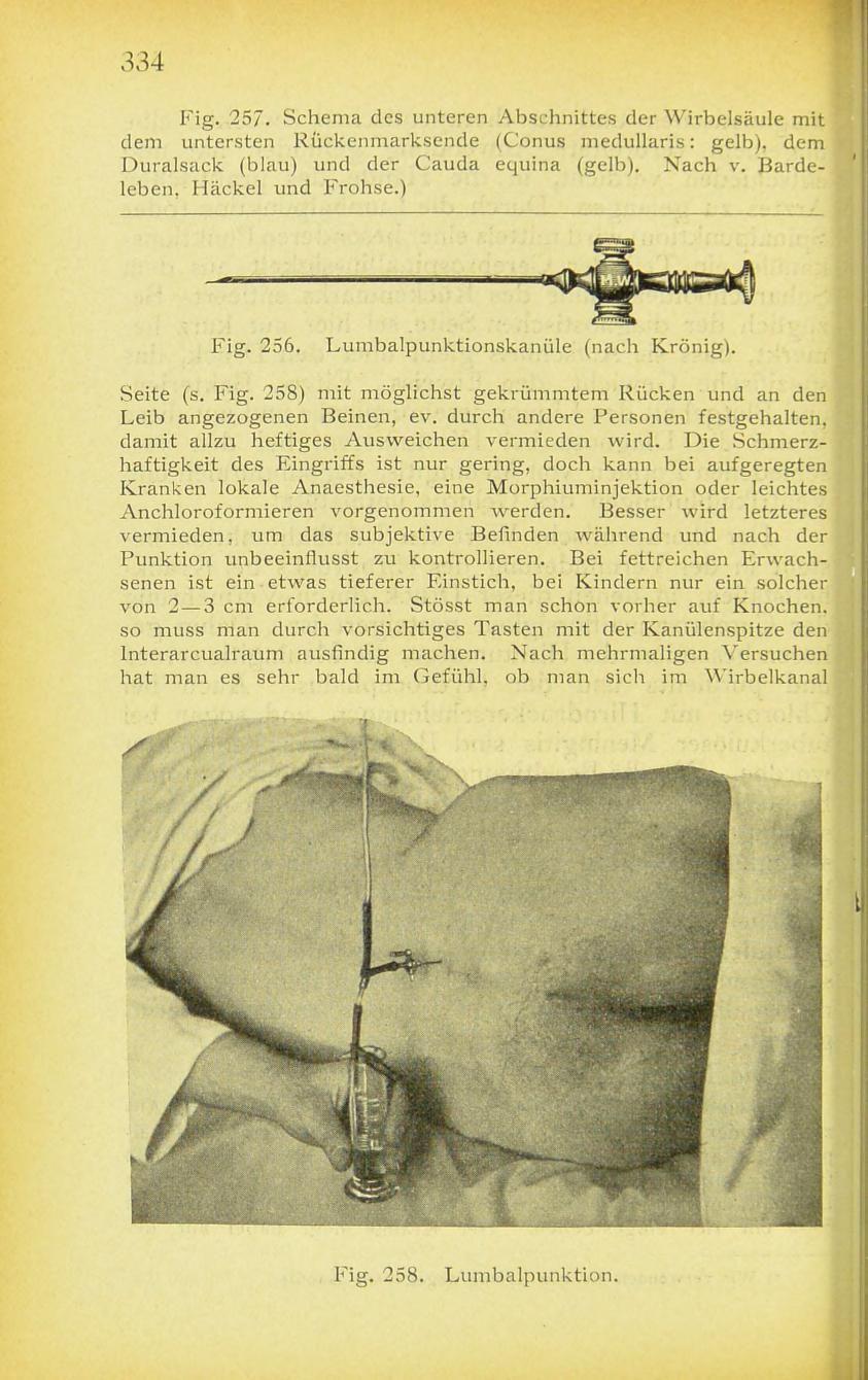 Lumbar Puncture.- Atlas und Grundriss der Allgemeinen Diagnostik ...
