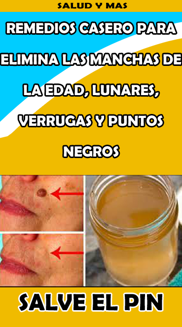 Pin En Mascarilla Y Crema