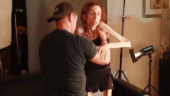 Actriz que sufría de anorexia logra cambiar su vida - http://bit.ly/1invE7o