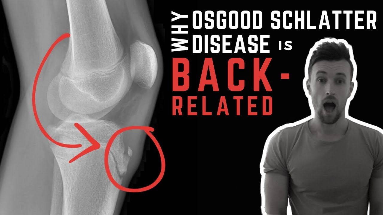 Why Osgood Schlatter Disease is Back-Related
