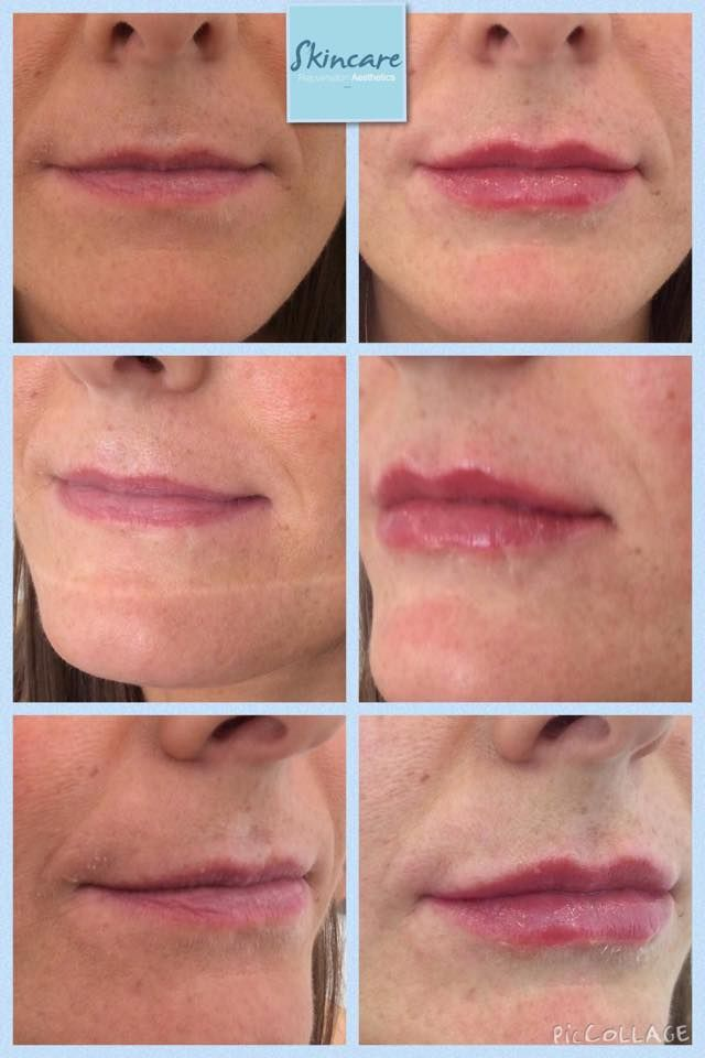 A lovely Natural Lip Enhancement achieved after using 1 ml