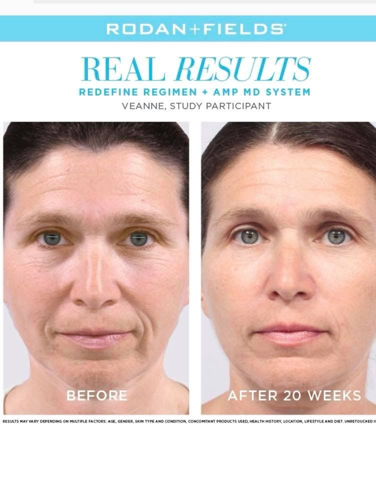 Exclusive Only To Rodan Fields The Amp Md 2 0 System When Used As Directed Will 1 Conditi Rodan And Fields Rodan And Fields Redefine Redefine Regimen