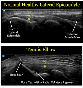 Lake Washington Sports And Spine Tennis Elbow Not Just For Tennis Players Tennis Elbow Diagnostic Medical Sonography Medical Ultrasound